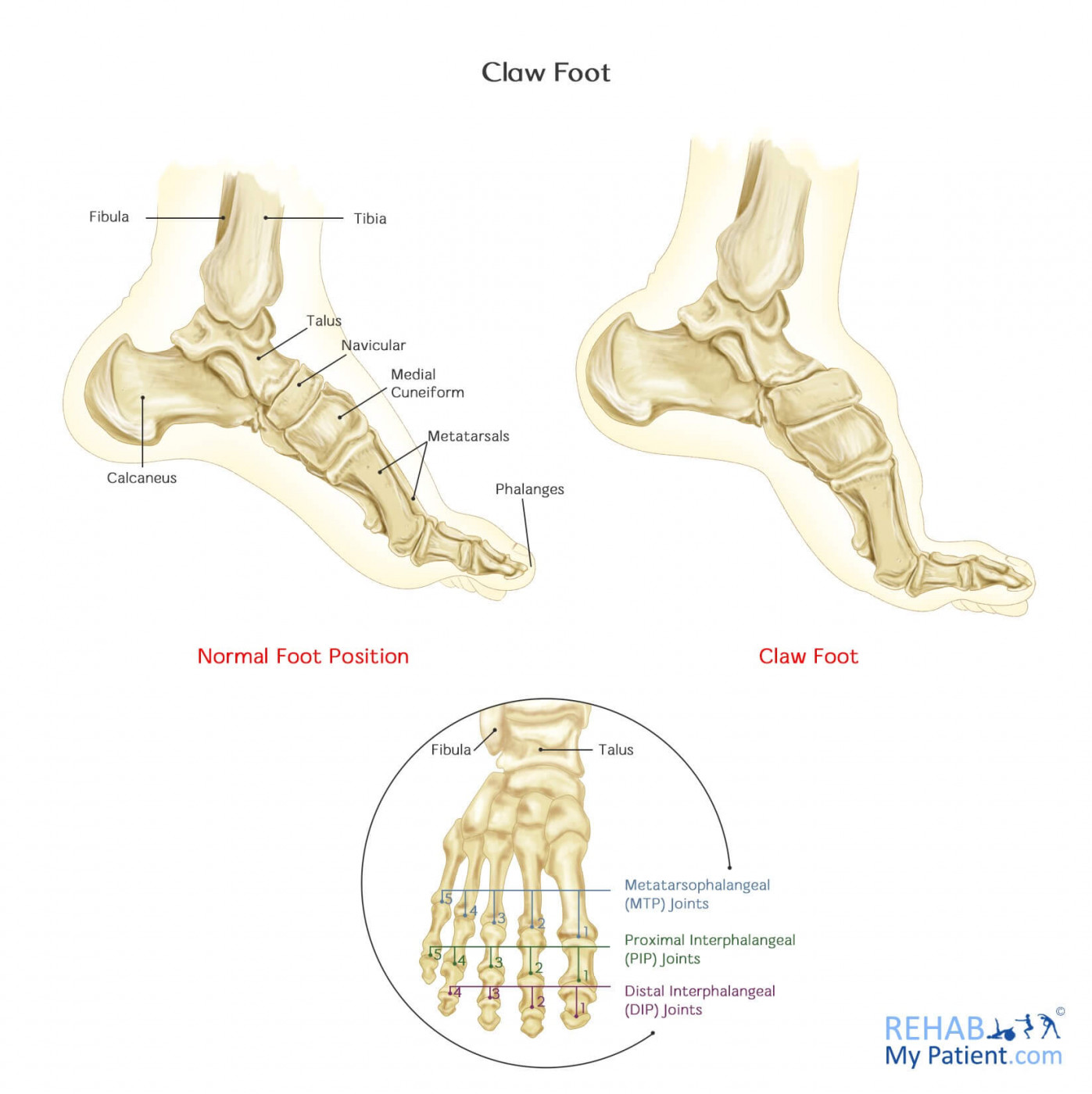 Claw Foot Rehab My Patient