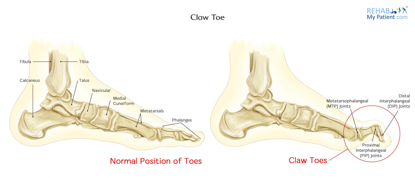 Claw Toe | Rehab My Patient