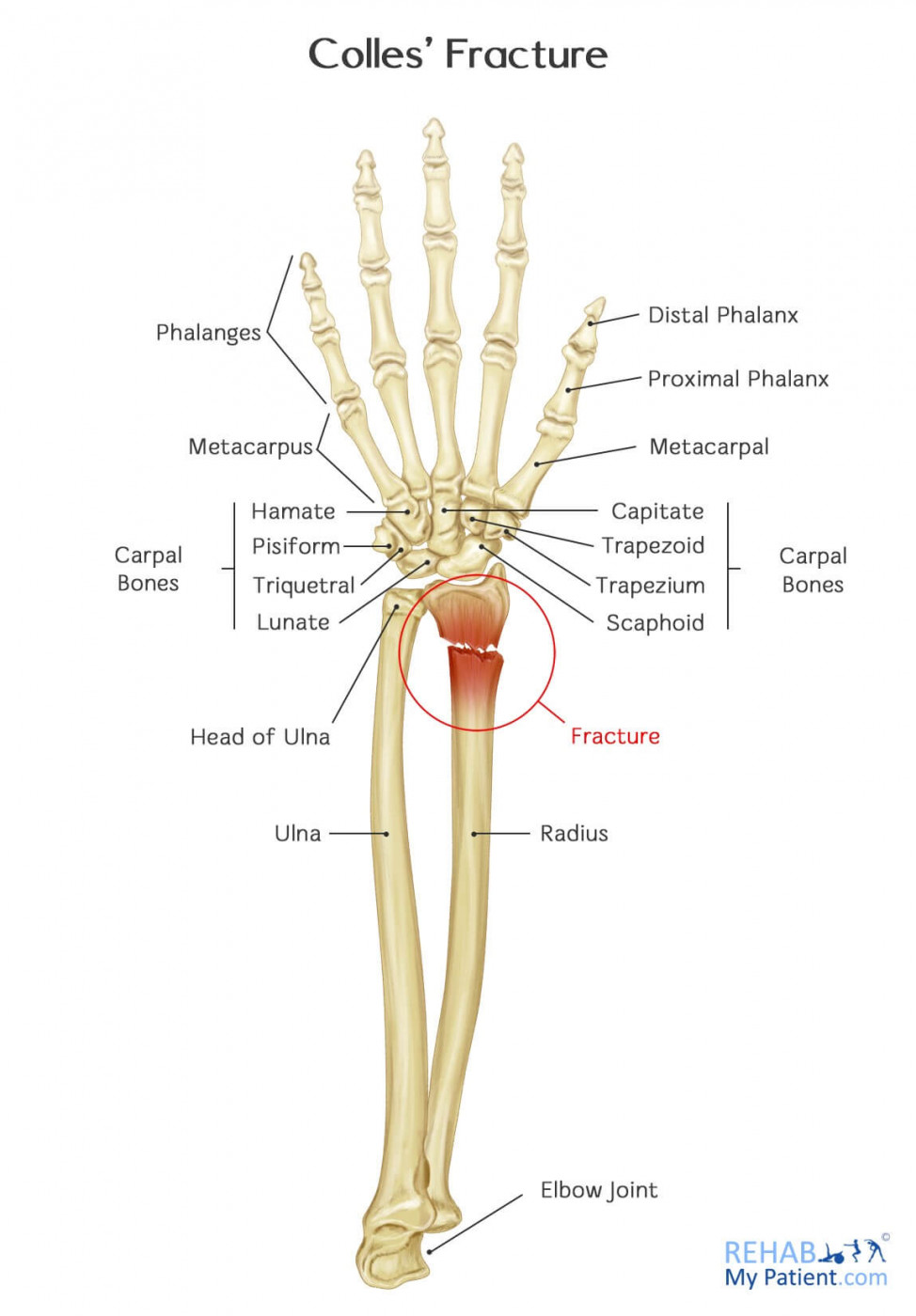 Colles' Fracture - Pictures, Treatment, Healing Time, Surgery, Symptoms