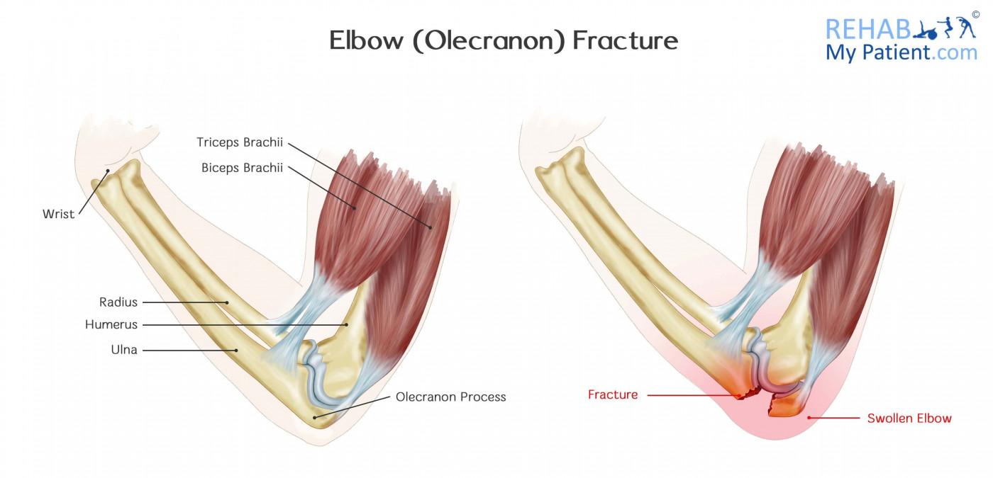 Elbow Olecranon Fracture Rehab My Patient