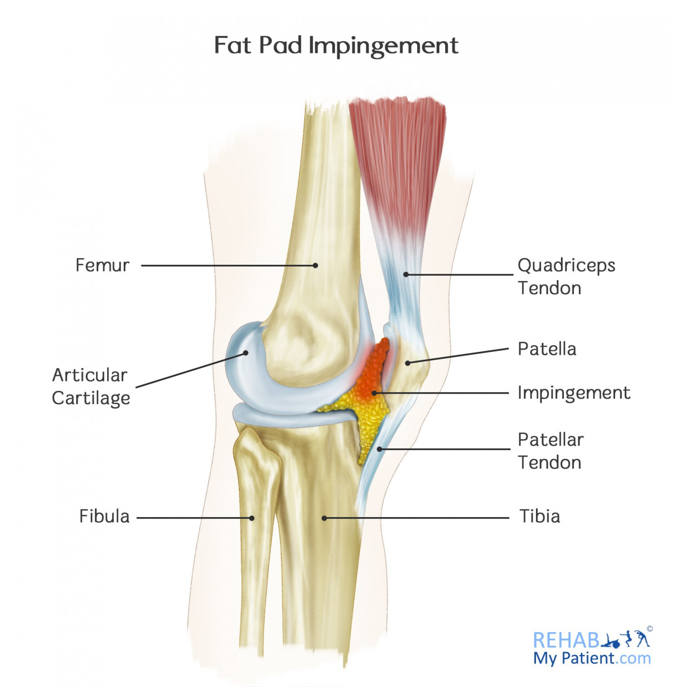 Fat Pad Impingement