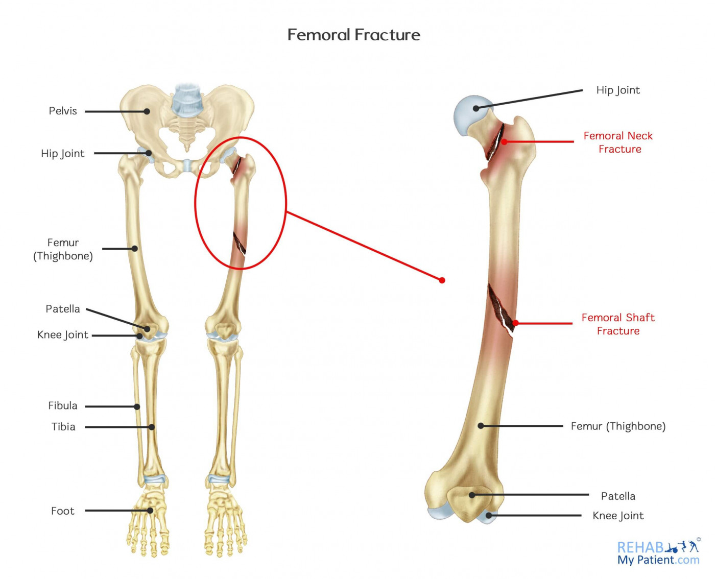 Femoral Fracture Rehab My Patient