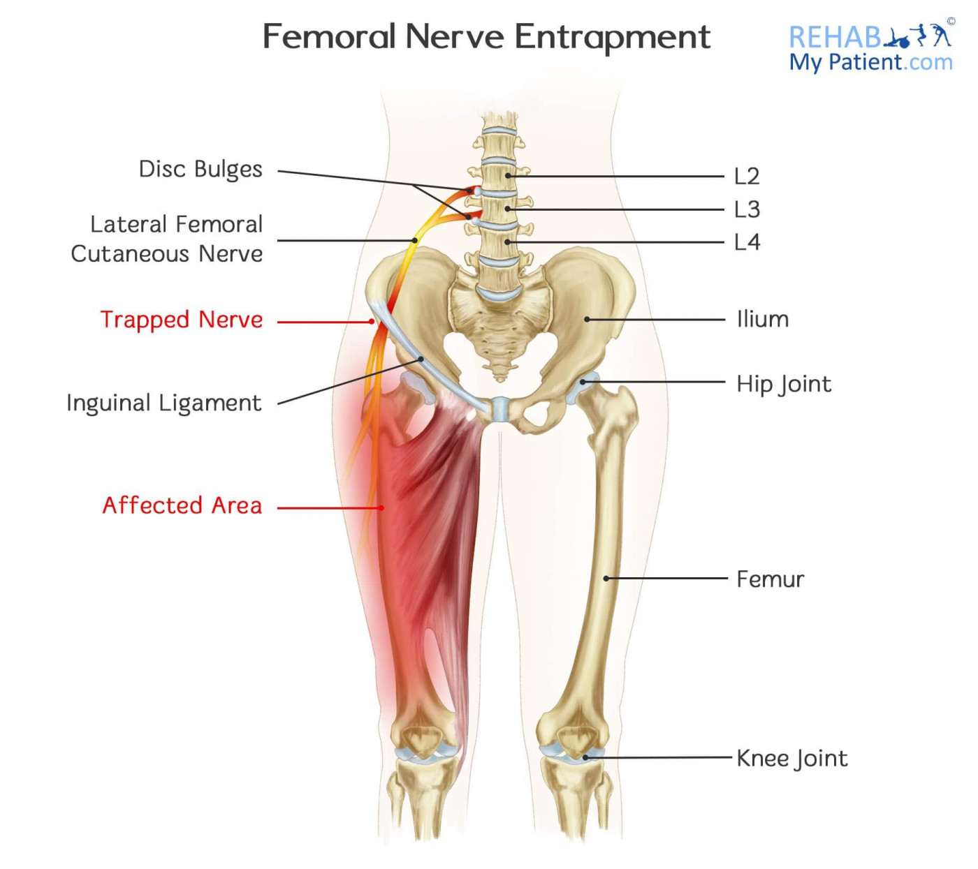 Femoral nerve entrapment rehab my patient how to treat femoral nerve entrapment pooptronica Image collections