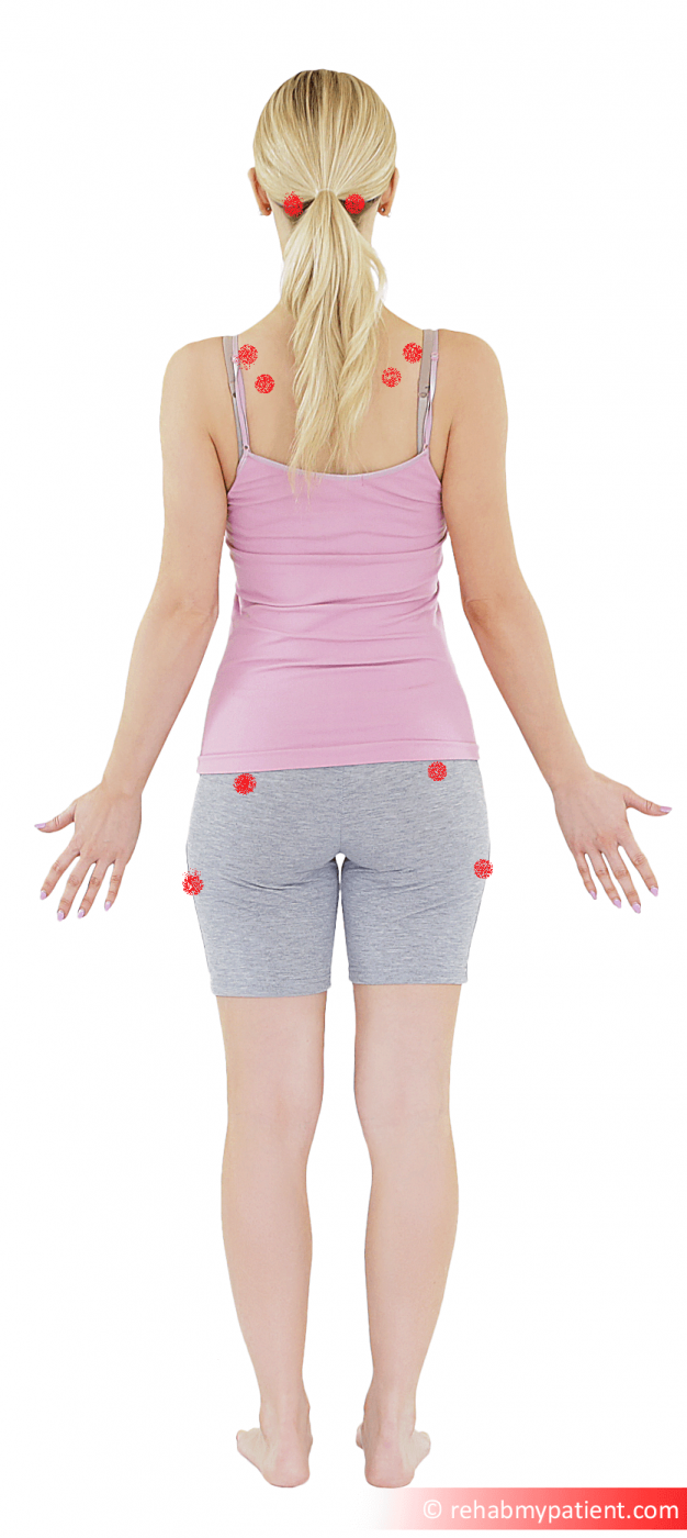 Fibromyalgia point back