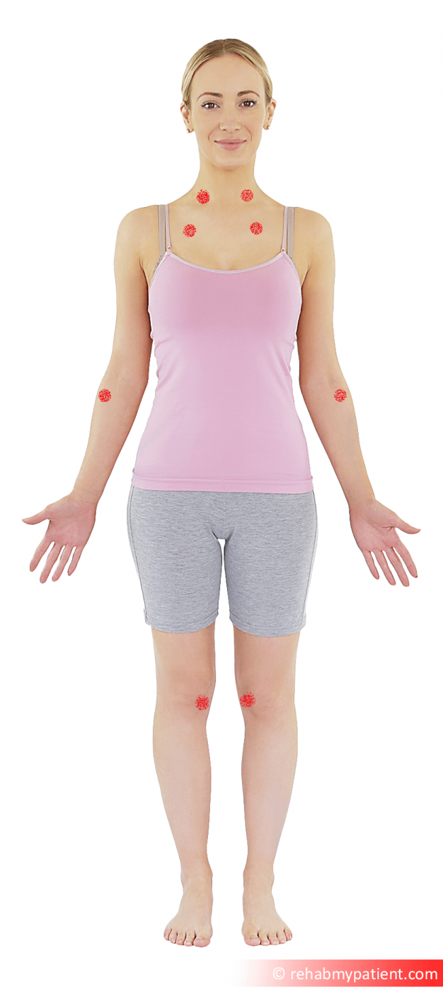 Fibromyalgia point front