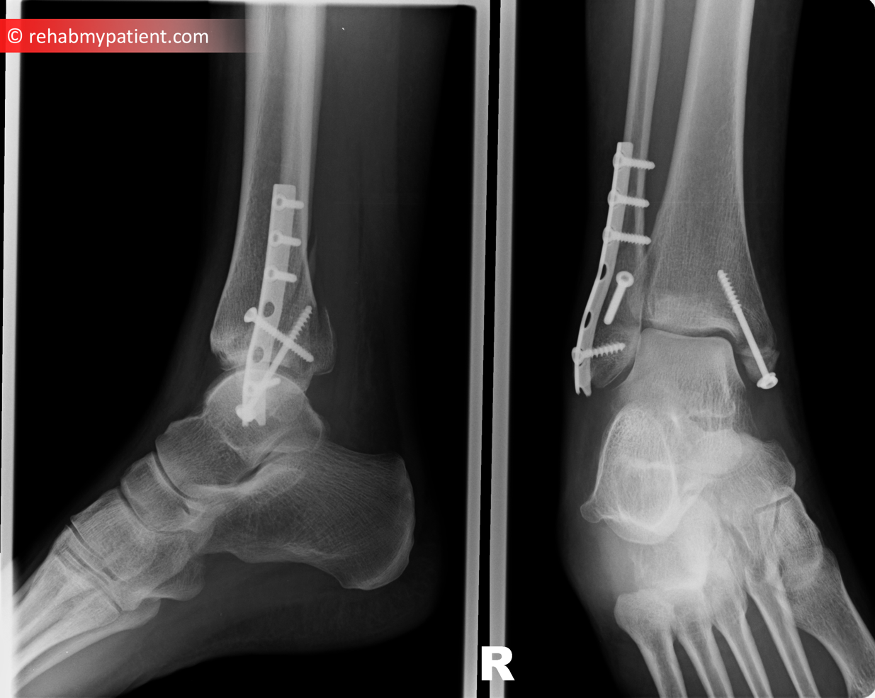 Fibula and Tibial Fracture | Rehab My Patient