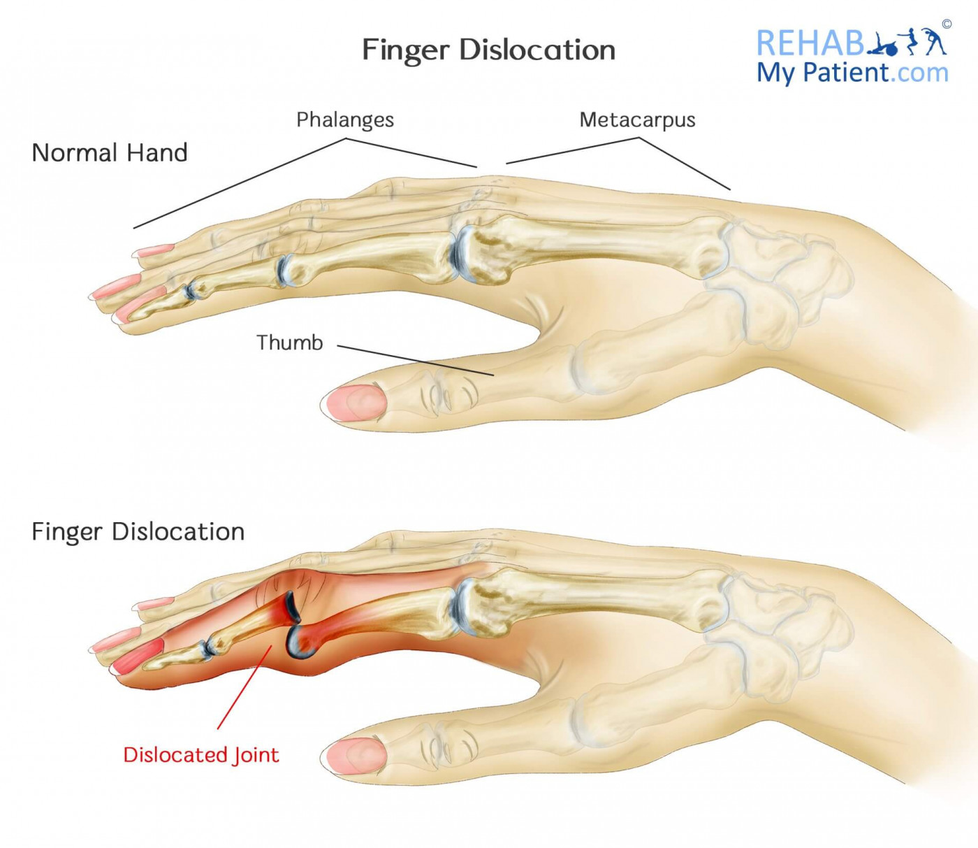 Finger Dislocation | Rehab My Patient