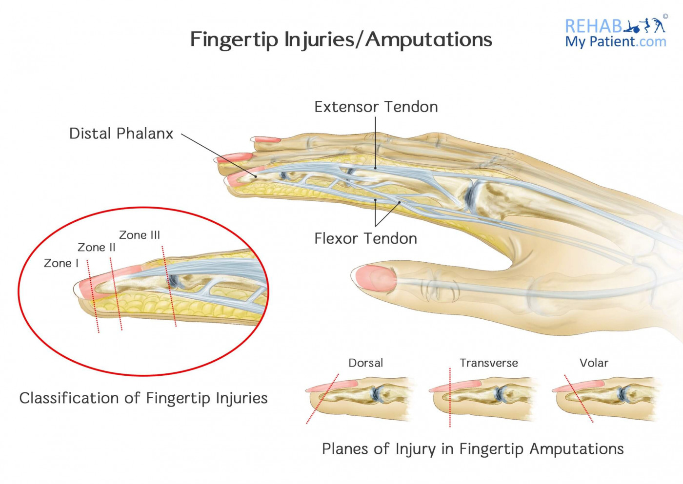 Fingertip Injuries/Amputations | Rehab My Patient
