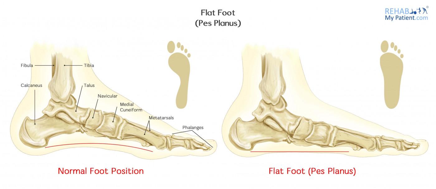Flat Foot (Pes Planus) | Rehab My Patient