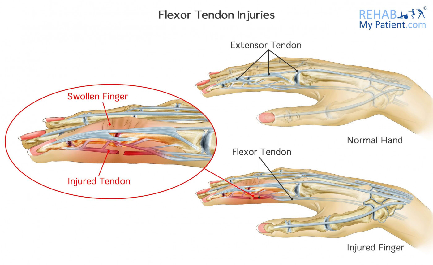 Flexor Tendon Injuries | Rehab My Patient