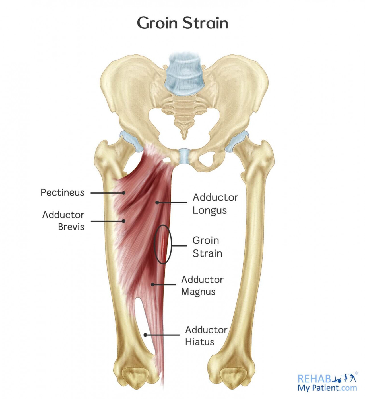 Groin Strain | Rehab My Patient