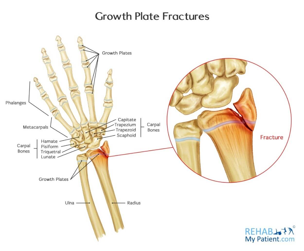 Growth Plate Fractures | Rehab My Patient