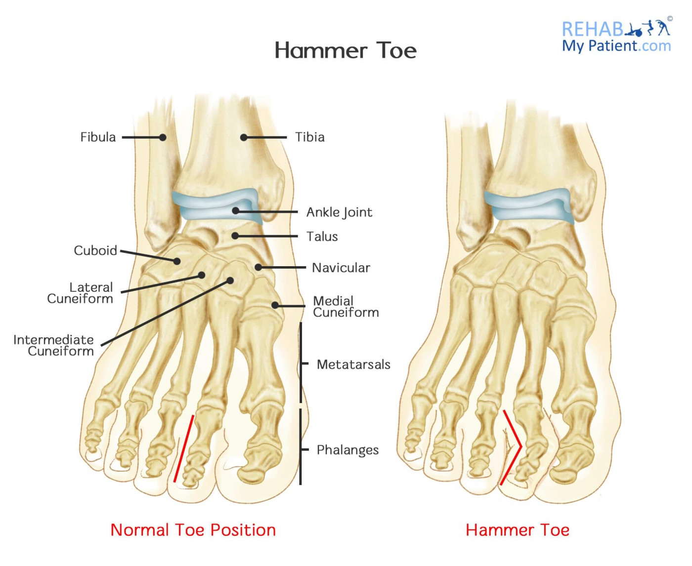 Hammer Toe | Rehab My Patient
