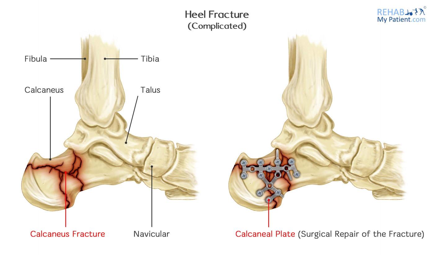 Heel Fracture Rehab My Patient