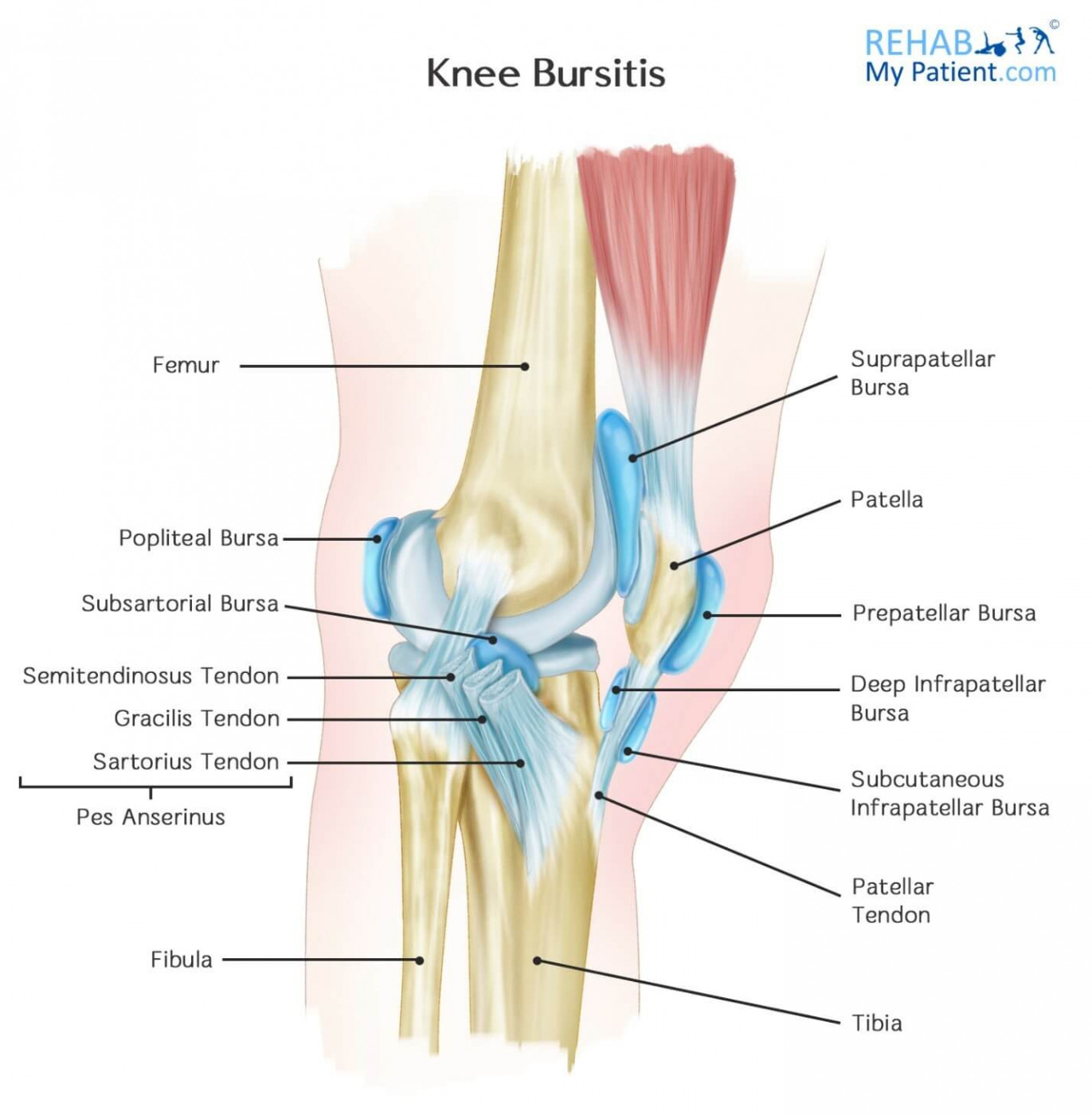 Knee Bursitis Rehab My Patient