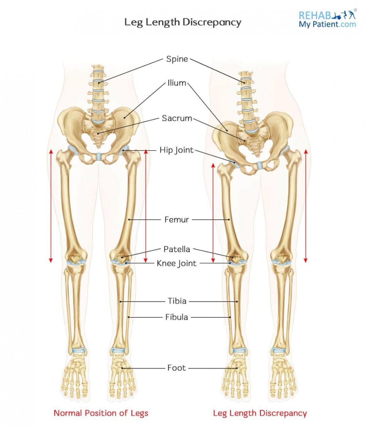 Leg Length Discrepancy | Rehab My Patient