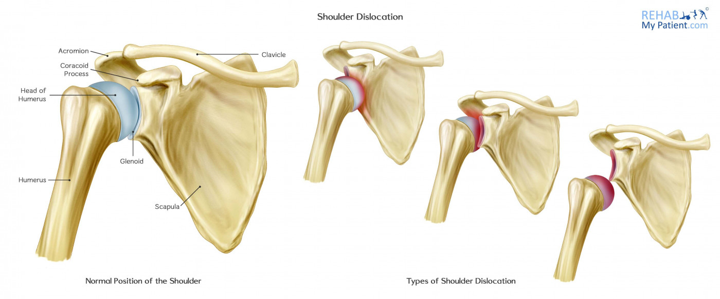 Shoulder Dislocation | Rehab My Patient