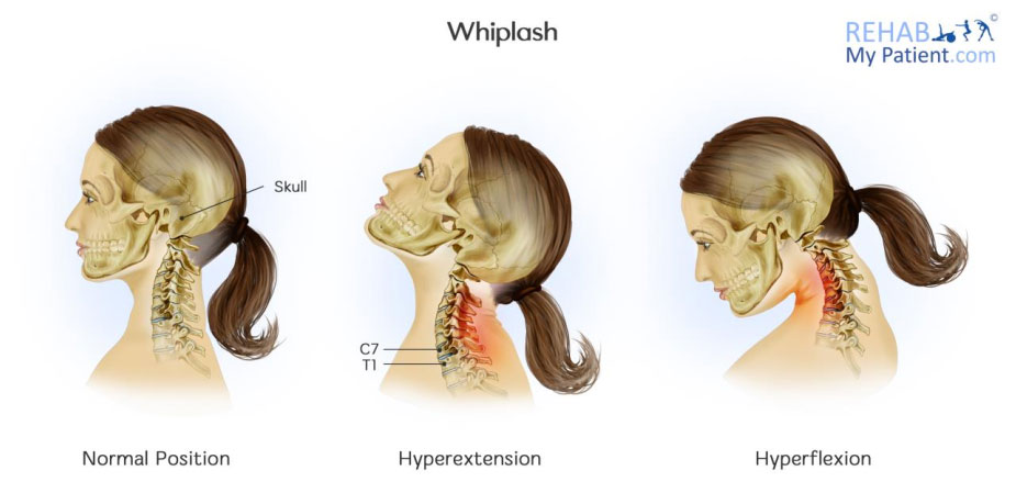 Whiplash and Whiplash Associated Disorder (WAD)